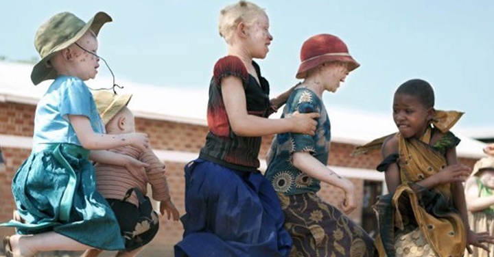albinos, tanzania, refugio,  AIPC Pandora, kabanga, ana palacios
