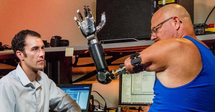 prótesis, tecnología, salud, implante, biónico, cyborg