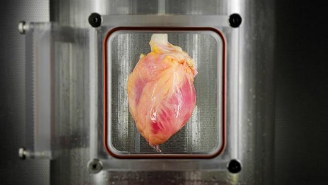 Corazón, trasplante, donación de órganos, medicina, salud, ciencias