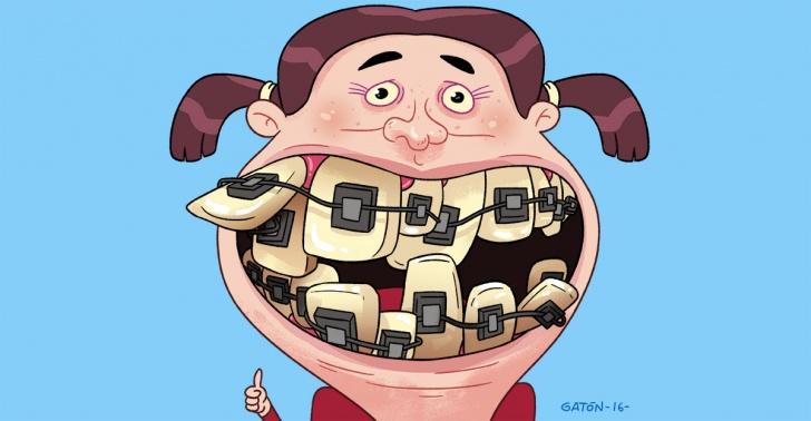 medicina, ortodoncia, dientes, salud, frenillos