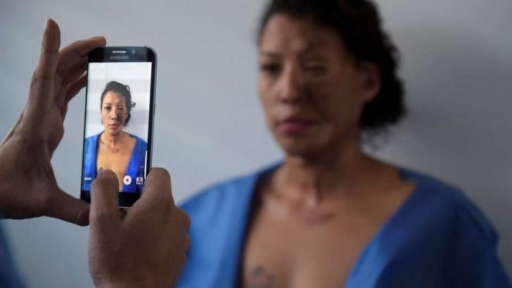 Cirugía, violencia de género, femicidios, Colombia, ataques con ácido