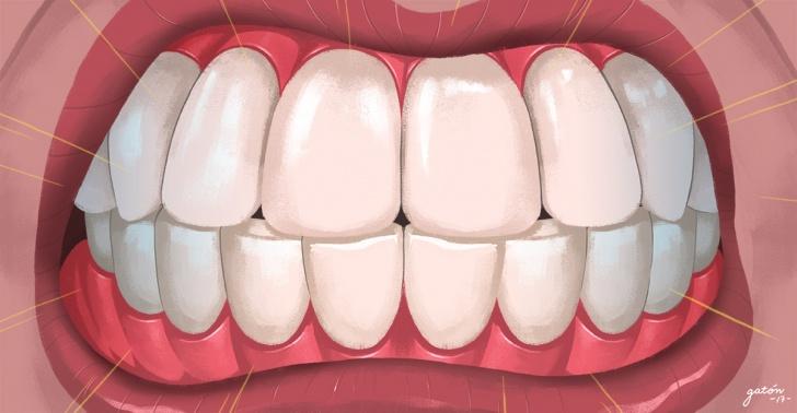 bruxismo, salud, boca, dentista, ortodoncia, solucion