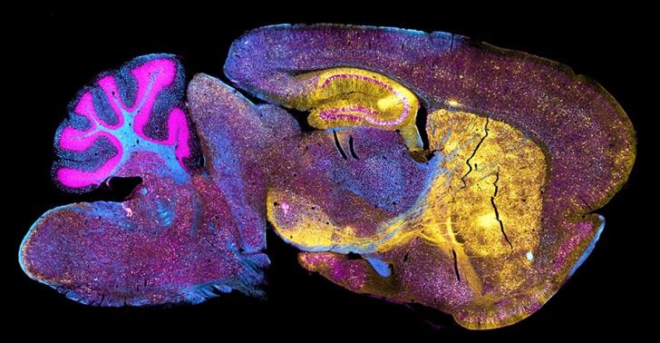 ratón, humano, cerebro, medicina regenerativa, ciencia