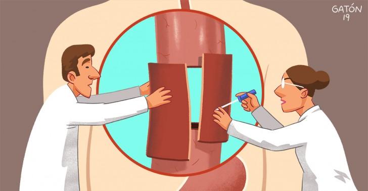 esófago artificial, atresia de esófago, órgano artificial, medicina, salud